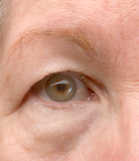 older woman with green eye and drooping eyelid